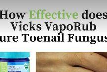 Nail Fungus Cures