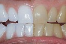 teeth whitener.
