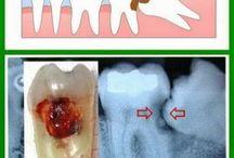 Wisdom teeth - not so wise!
