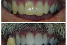 Zoom! Whitening / Make your teeth bright again