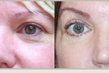 Before After Photos of Patients / You can view the Before- After photos of our patients to see the difference we make.