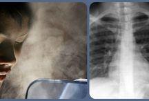 des poumons neufs
