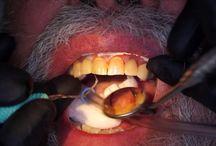 Dentadura bonita