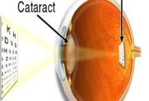 natural cures for cataract