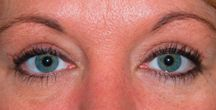 Eye lift | Blepharoplasty Seattle | Bellevue