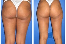 Liposuction - Inner Thighs / Dr. William Hall specializes in liposuction treatments of the inner thigh. He uses a variety of techniques for surgery such as laser lipo and smart lipo. Call today to schedule your complimentary consultation to learn more about liposuction cost, liposuction pros and cons, and liposuction side effects at 480-946-7100. View the Infini Phoenix Liposuction website at Infiniskin.com to see additional liposuction before and after photos, videos, and reviews.