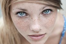 Freckles