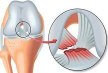 ORTOPEDİK HASTALIKLAR / Ortopedik Hastalıklar Kategorisinde Travma İlk Yardım Yaralanmalar Yapay (Suni) Solunum Şok Hali Yanıklar Zehirlenmeler Kırık Çıkıklar Kanama Osteoporoz (Kemik Erimesi) Artroz (Kireçlenme) Doğuştan Kalça Çıkığı Sırt Ağrısı Fıtık Baldır Krampları Siyatik Spor Yaralanmaları Çarpma Burkulma Çıkıklar Kas Yırtılması Menisküs Skolyoz Ayağın Yapısal Bozuklukları Düztabanlık ve birçok ortopedi sorunlarına dair profesyonel makaleler bulunmaktadır...