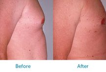 Liposuction Before and Afters