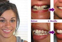 Six Month Smile #Braces