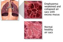 COPD Information and Trials / Western States Clinical Research conducts clinical trials in a variety of fields and often has trials enrolling for COPD and Asthma. We'll share COPD disease information and let you know if we have an enrolling trial on this board.