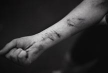 Self harm / Self harming, scars