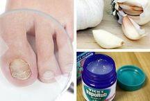 Gegen nagelpilz