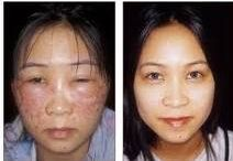 REVITOL Natural Skin Care