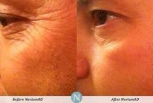 NeriumAD Real Results / NeriumAD is a breakthrough skincare treatment that reduces deep wrinkles, fine lines, discoloration, pore size  and improves overall texture. www.cardyoung.nerium.com / by chantal young