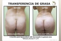 Liposuction / Liposuction Miami