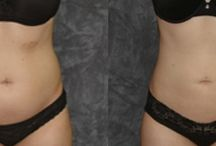 Before & After - Liposuction  / Before & After Liposuction surgery
