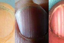 Maladie ongles