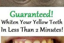 Teeth whiten