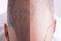 Men Hair Loss Treatments / Here we are going to focus on men hair loss treatment and and its solutions.