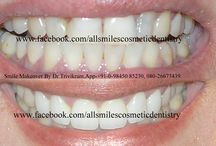 smile makeover pictures / visit https://www.facebook.com/Allsmilescosmeticdentistry for more pictures of smile makeovers by Dr Trivikram , expert cosmetic dentist in  Bangalore.Stunning Smile makeovers-. Any adult with gaps, crooked teeth, oversized, small teeth, dark teeth, protruding or fractured teeth is a candidate for smile makeover. Teeth can be straightened without braces/orthodontic treatment in seven days over two visits.