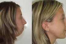 operace čelisti