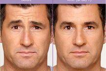 BOTOX Cosmetic / Dr. Anna M. Berik, Boston's Top Cosmetic dentist offers BOTOX Cosmetic to improve your facial esthetics.