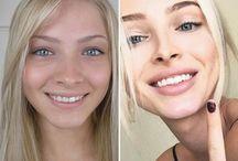 Alena Shishkova Before and After /  Alena Shishkova before and after plastic surgery photos