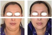 Lipofilling visage / Le lipofilling permet par transfert de graisse de rajeunir, embellir, ou augmenter le volume de certaines zones du visage.