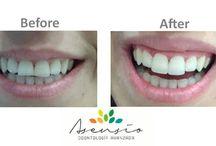 #aesthetic #dentistasensio #dentaltreatmentabroad #dentistvalencia #healthtourism #dentalholidays