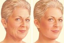 Hair Transplant / Its the way to restore the lost hair permanent..Its Painless and Comfortable treatment.