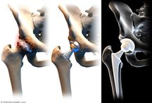 Hip Replacement / More than 327,000 people have total hip replacement surgery in the United States each year, and the vast majority of those surgeries are done to relieve arthritis pain and increase hip function.