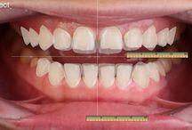 Odontoiatria estetica in Romania. / Hai bisogno di odontoiatria estetica? Prendersi cura in ogni aspetto della salute e della cura della bocca con estetica dentale . Faccette in ceramica, implantologia, implantologia a carico immediato, corone dentali , ponti per denti e  più , in Romania, per Voi !
