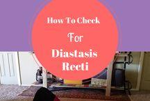 Diastasis Recti