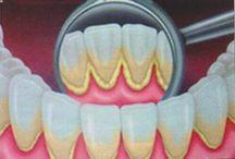Suu hampaat