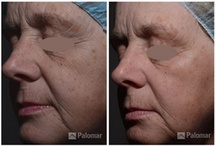 Emerge™ Fractional Laser / Palomar Emerge™ Fractional Laser works to rejuvenate the skin by stimulating collagen and elastin in the skin, promoting a more youthful skin.  Your skin is unique – your genetic make-up, lifestyle and personal history all contribute to how your skin looks and feels. Emerge™ Treats: Stretch Marks,  Pigmentation,  Wrinkles and Fine Lines,  Scarring and Skin Rejuvenation.