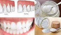 Zahnfleischerkrankung und Lösungen