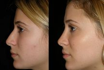 Nose before and after