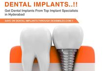 dental implants Hyderabad / Get Dental Implants, full mouth implants, implant -dentures, implant retained bridges and crowns, bone grafts, same-day implants, single implants in Hyderabad, Find  Prices, Best Implant Specialists, Oral Surgeons, Prosthodontists, General Dentists and Dental Clinics.