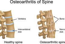 •Osteoarthritis Treatment without Surgery in Delhi