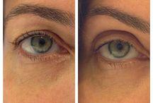 eye lift / by Pamela EPPERSON