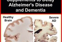alzheimer's prevention food