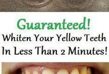 trt yellow teeth
