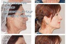 Deep Chemical Peeling / Chemical peels work by putting a chemical on the skin that reacts with and breaks up the top layers. Deep Chemical Peeling Before & After Photo performed by Dr Kaye Ocean Clinic Marbella.