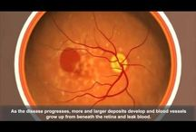 Age-Related Macular Degeneration #AMD