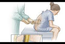 Spinal anestezi