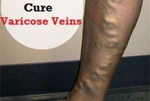 Remedies for varicose