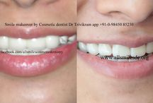 average cost of smile makeover / smile makeover cost, smile makeover veneers,complete smile makeover,smile makeover information,smile makeover surgery.Smile makeovers by expert cosmetic dentist Dr Trivikram in Bangalore. in just 5-7 days in 2-3 visits. PH +91-80-26673439, 98450 85230.
