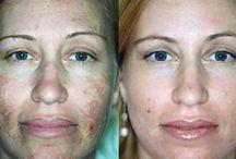 Yüz aknesi temizliği