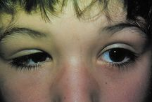 Eye Conditions and Eye Health!
